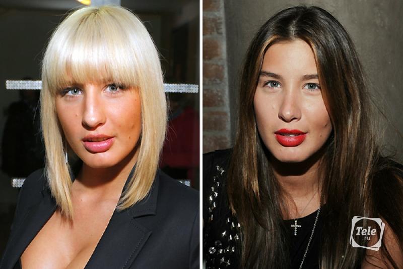 Эвелина бледанс фото до и после пластики группа тату фото до и после